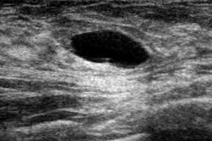 الورم الغدي الليفي شكل الورم الحميد في الثدي بالصور